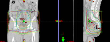 3DCRT plan in a patient with rectosigmoid cancer