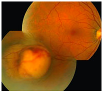 Ocular tumor visible in photograph of a retina